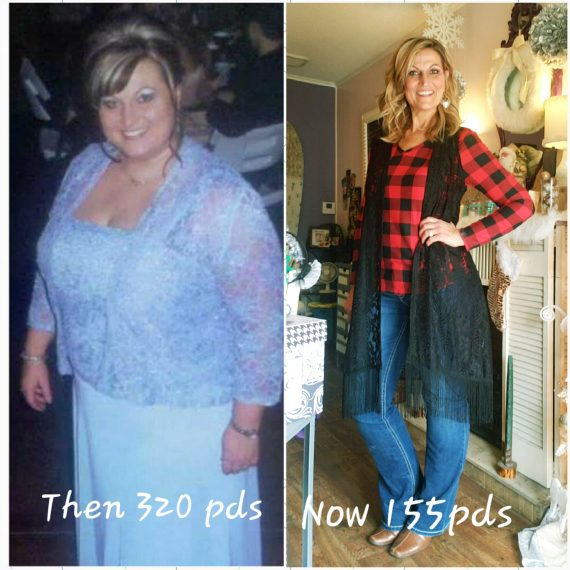 Tina Shelton Gastric Sleeve Results