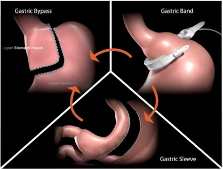 illustration of the gastric sleeve surgery in tijuana mexico